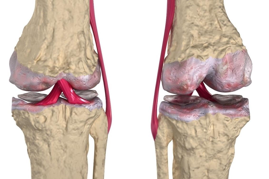 Causas de la aparición de la osteoartritis