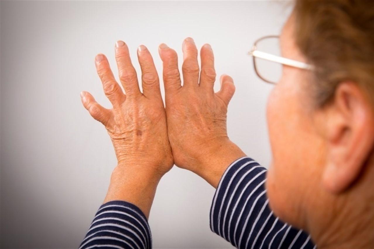 ¿Cómo afecta la osteoartritis a la vida diaria de las personas afectadas?