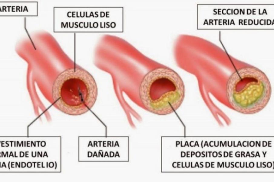 cortes transversales de arteria