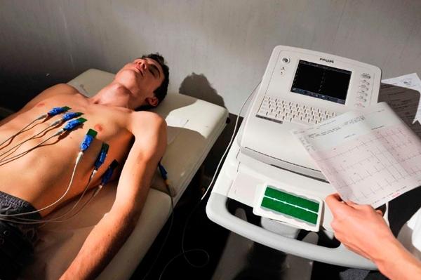 Diagnosticar la bradicardia con electrogramas