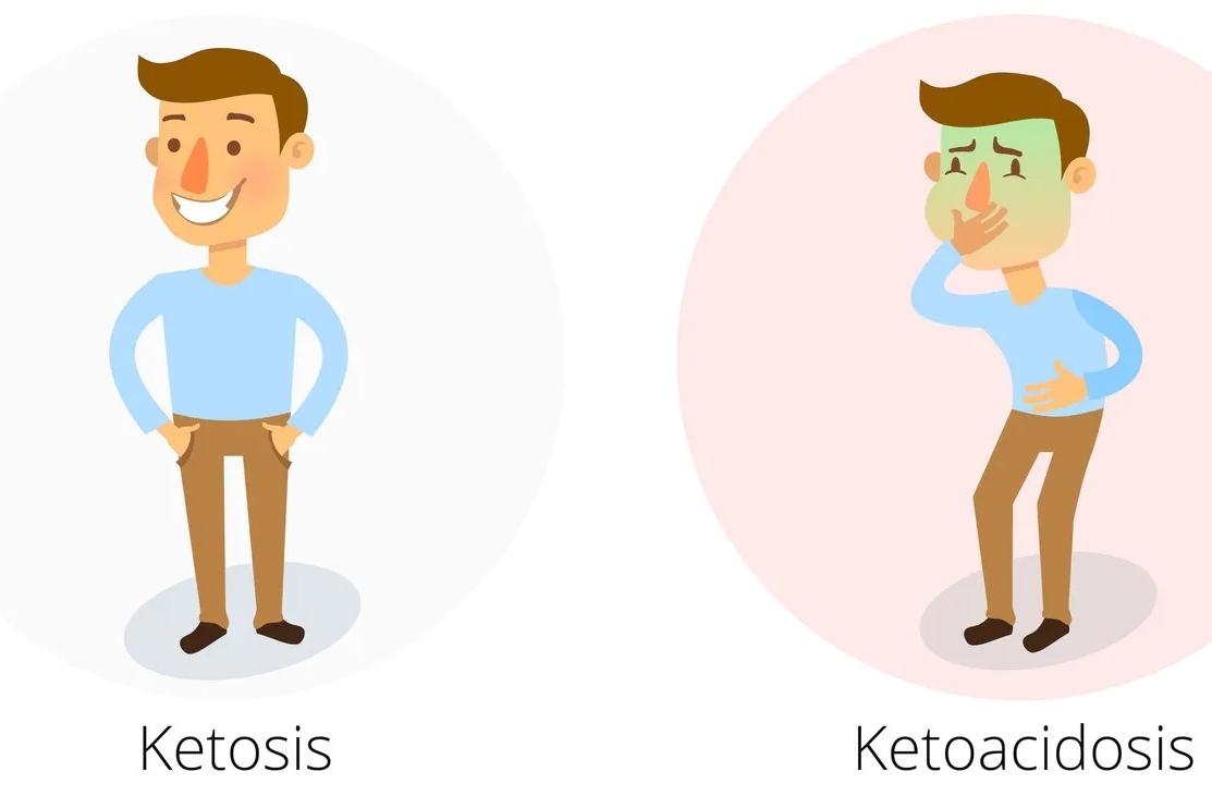 Diferencia entre cetosis y cetoacidosis