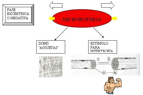 esceso muscular excentrico