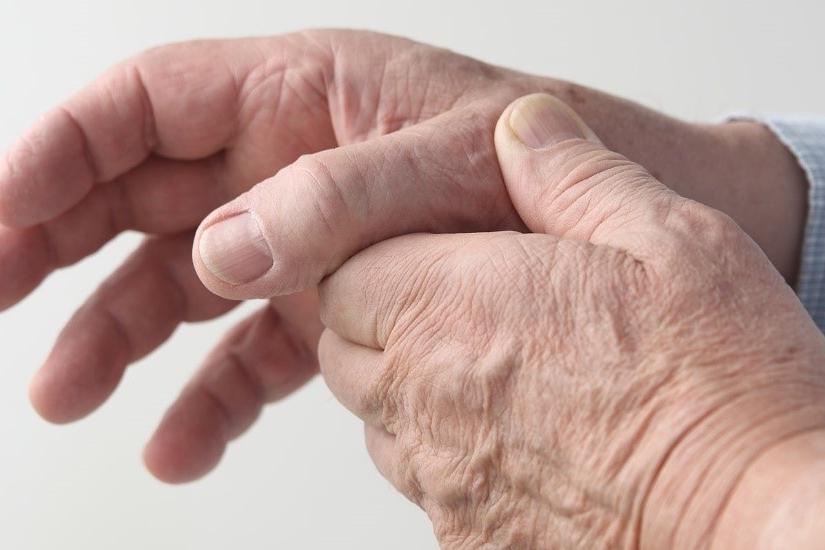 La osteoartritis, síntomas y características